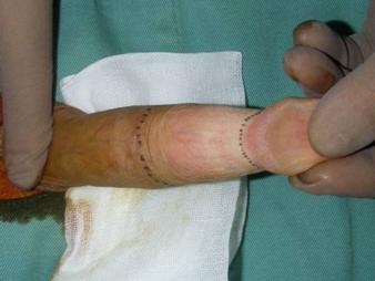 ほう けい 手術 2 週間 傷口